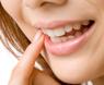 歯のクリーニングの種類