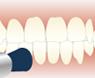 歯のクリーニングの種類3