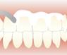 歯のクリーニングの種類2